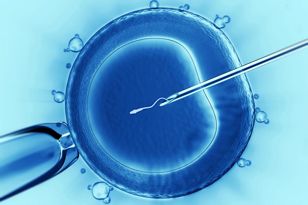 Subfertility - IVF Assisted Reproduction